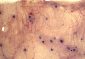 Bunostomun phelobotomun nodülleri