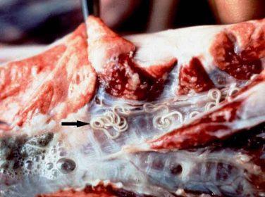 Verminöz Pneumoni (Paraziter Bronkopnömoni)