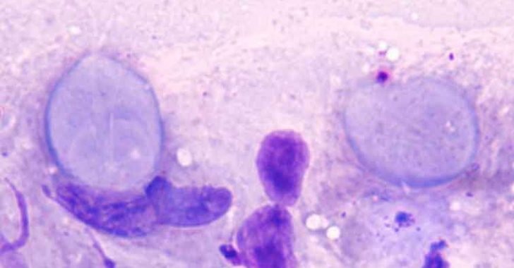 Buzağılarda Giardiasis